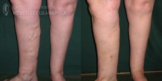 contractura musculara gamba