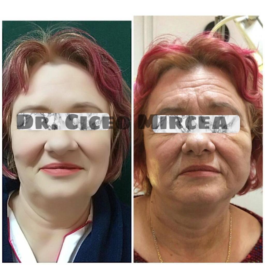 chirurgie estetica, lifting facial Cluj, clinica Medestet