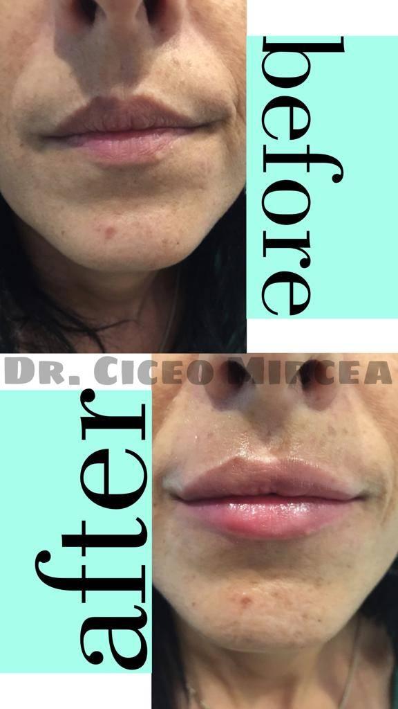 marire buze clinica Medestet, dr Ciceo