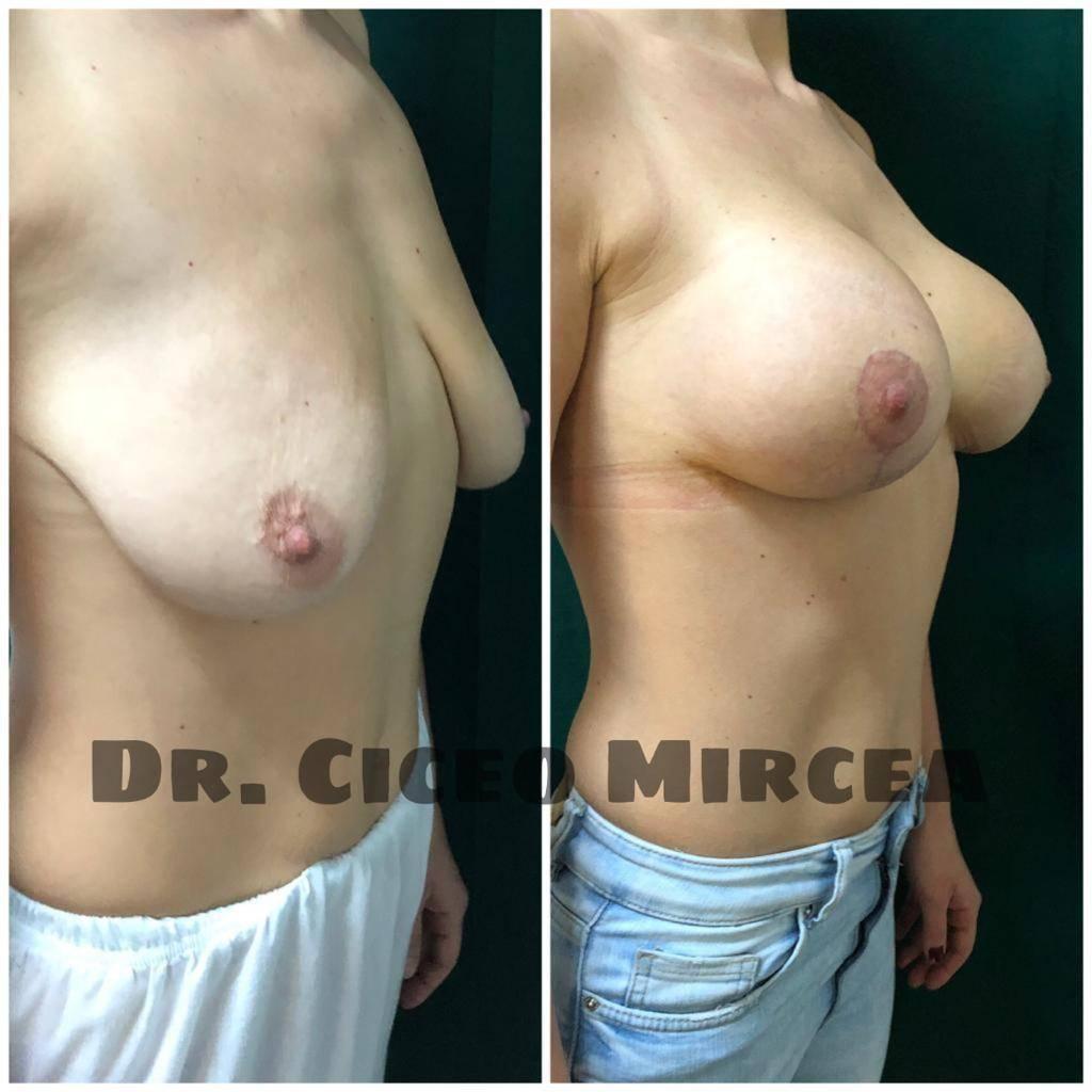masteopexie Cluj, reductie mamara clinica Medestet