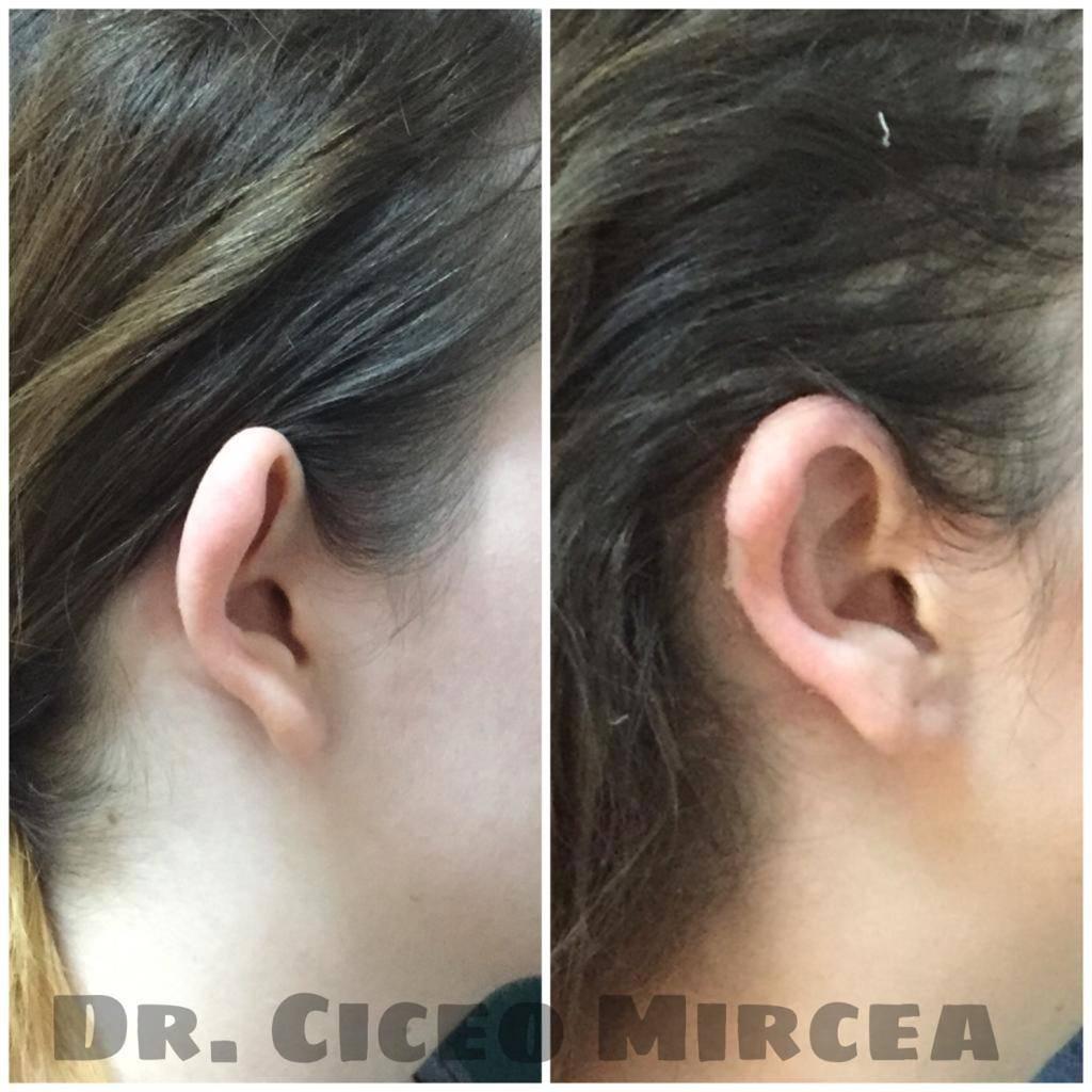 otoplastie, corectia urechii, clinica Medestet Cluj