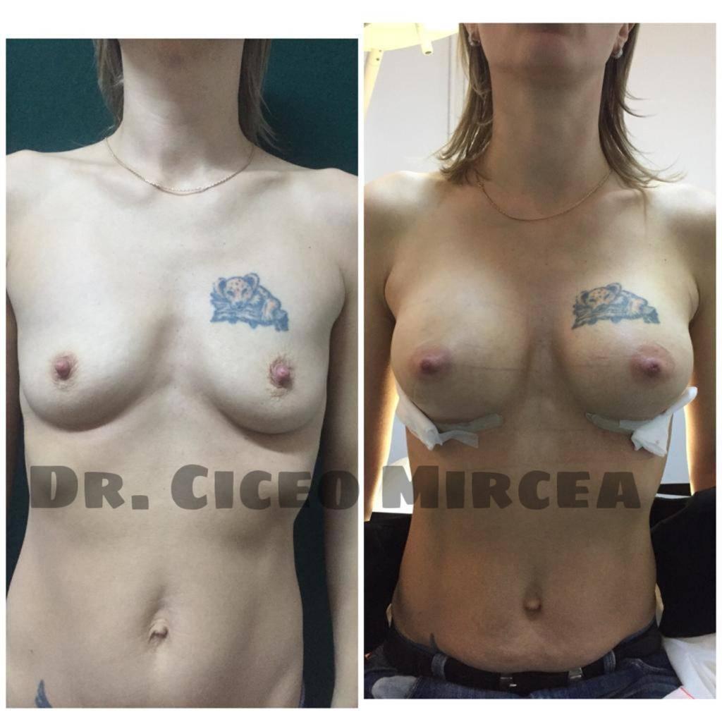 implanturi mamare Cluj, silicoane pret clinica Medestet