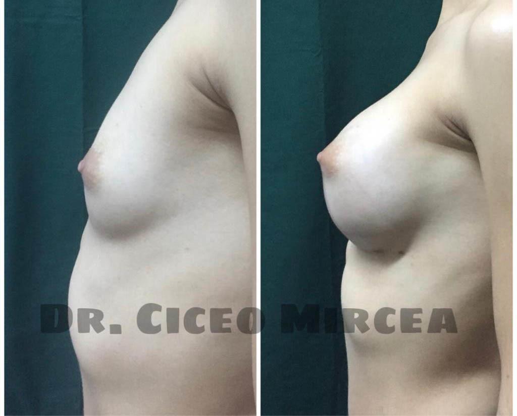 implant mamar Cluj, silicoane Cluj, clinica chirurgie estetica MEdestet
