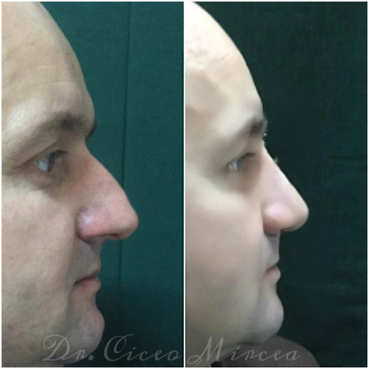 corectie nas Cluj, chirurgie estetica clinica Medestet, dr Mircea Ciceo