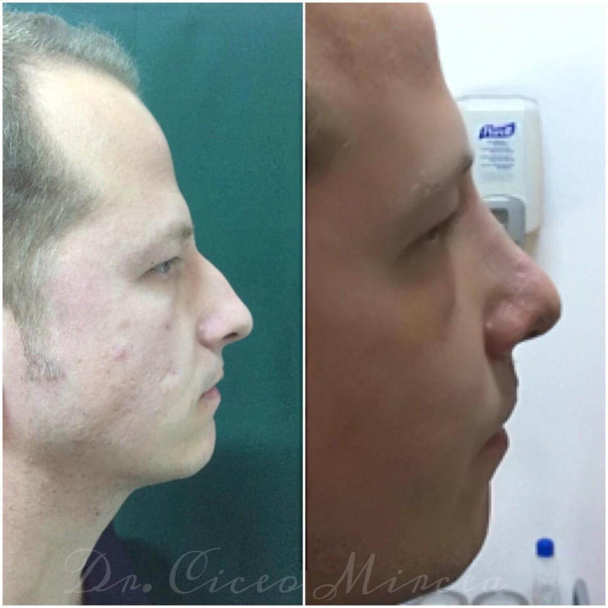 rinoplastie Cluj, chirurgie estetica clinica Medestet, dr Mircea Ciceo