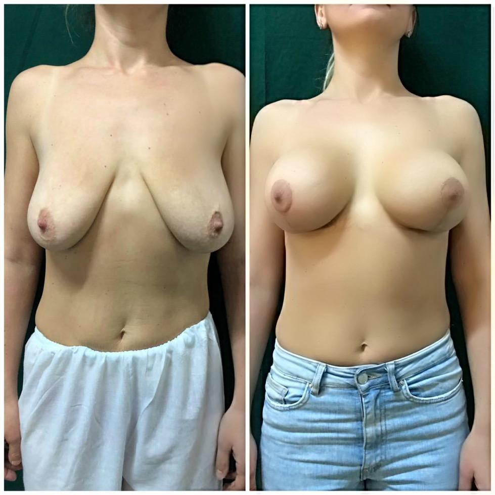 reductia sanilor Cluj, repozitionarea sanilor, masteopexie la clinica de chirurgie estetica Medestet Cluj
