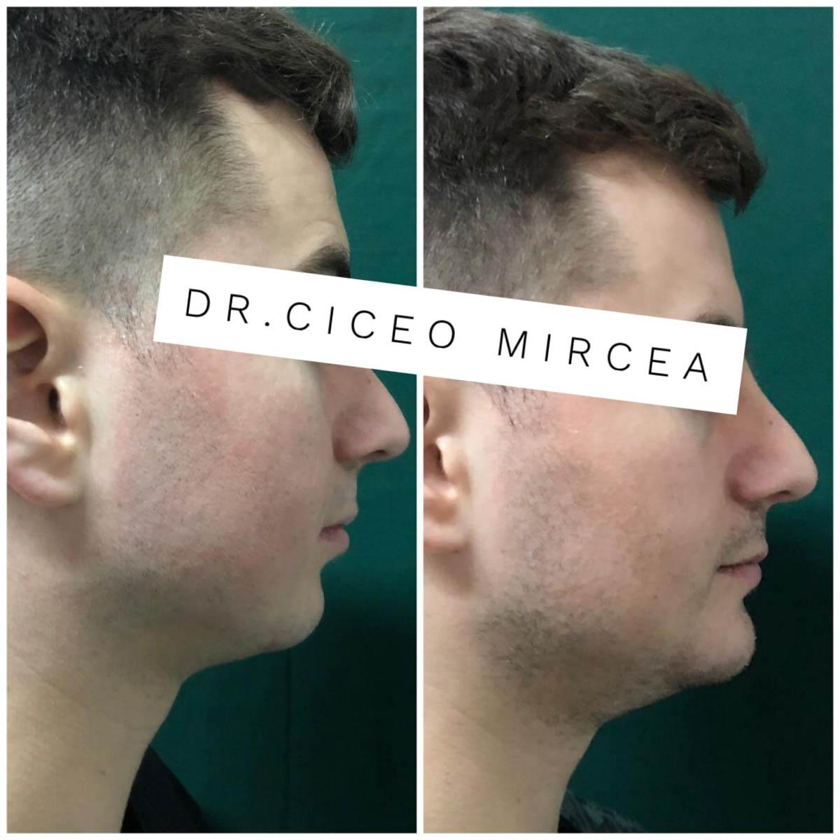 corectarea barbiei Cluj, clinica chirurgie estetica Medestet, dr Mircea Ciceo