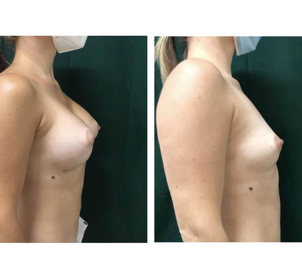 cazuri implante mamare Cluj, silicoane pret