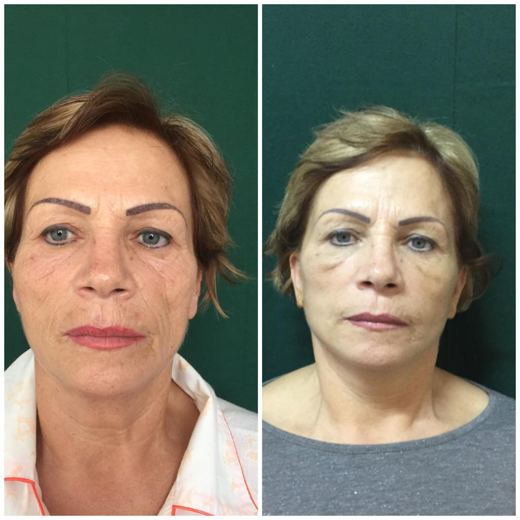 lifting facial Cluj - chirurgie estetica @ Medestet